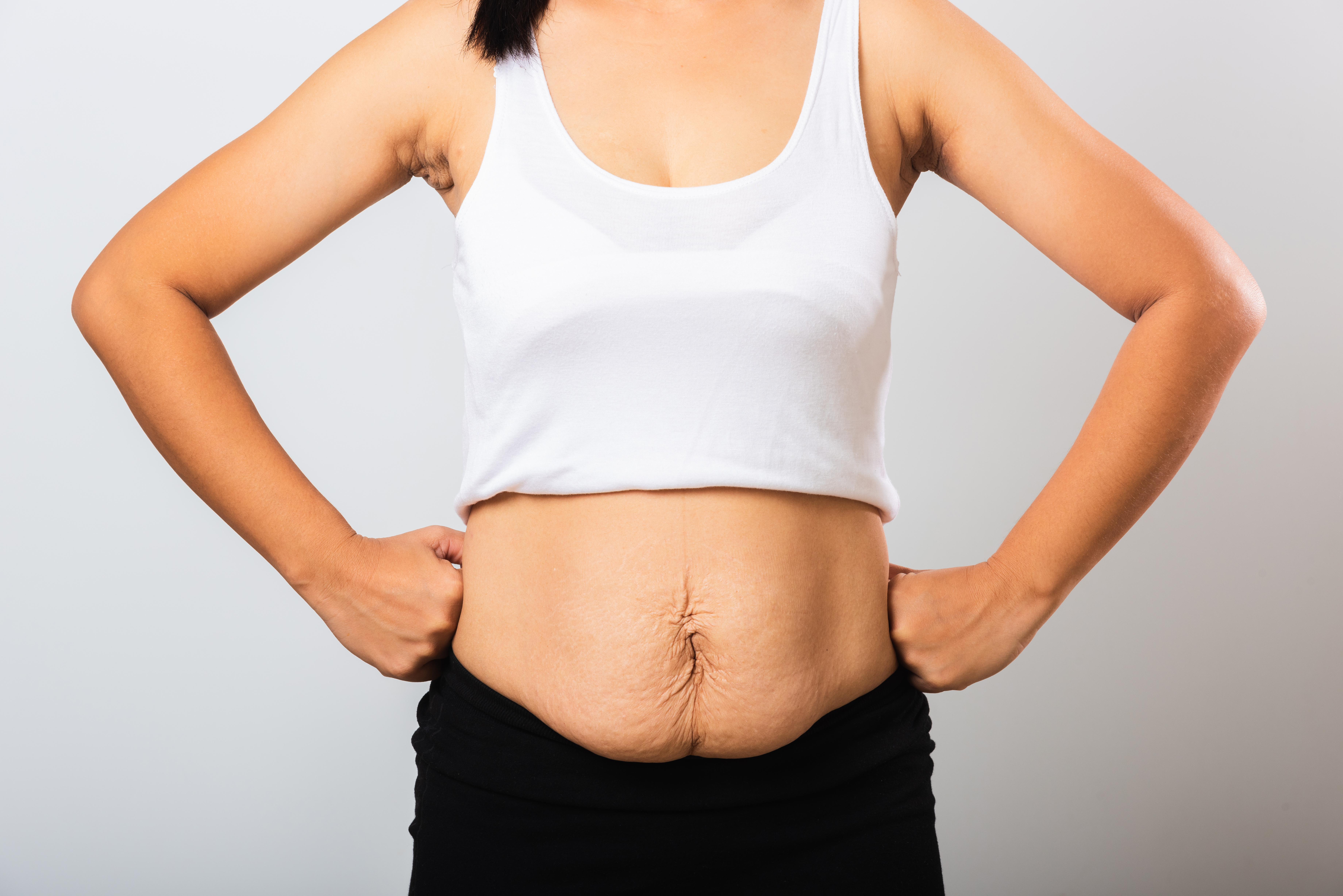 New mother using laser lipo to help with weight loss after pregnancy